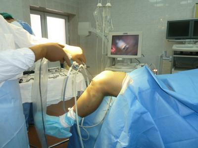Тула артроскопия коленного сустава врачи трещина тазобедренного сустава симптомы лечение