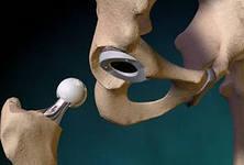 Протезы тазобедренного сустава