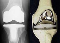 Замена коленного сустава тула
